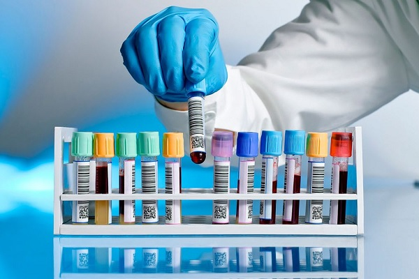 Inovação no laboratório clínico é tema de novo livro da SBPC/ML