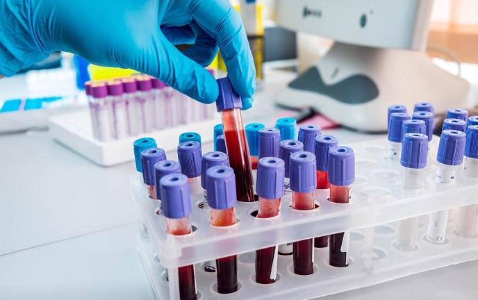 Dasa e Ministério da Saúde criarão Centro de Diagnóstico Emergencial