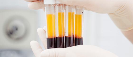 Uso do plasma convalescente pode ser opção terapêutica para Covid