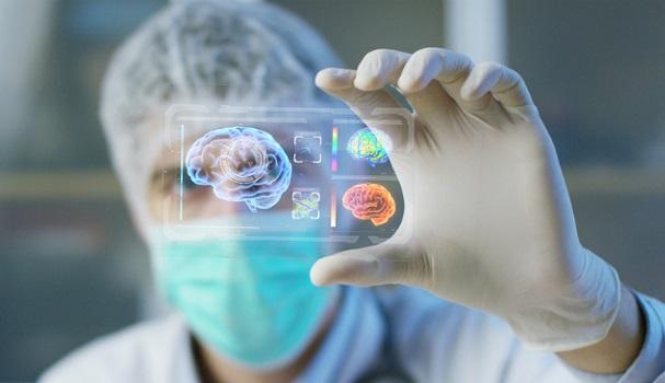 Faperj financia projeto de diagnóstico precoce de Alzheimer da Unigranrio