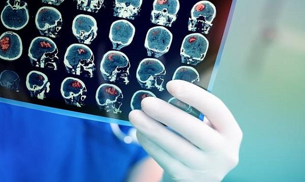Hospital Samaritano Paulista conquista certificação JCI em neurologia
