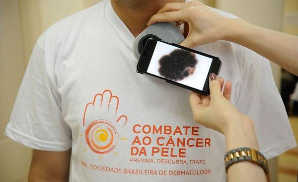 Software para diagnosticar melanoma alcança 86% de precisão