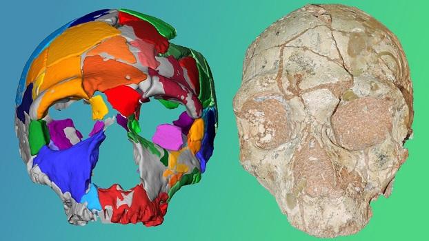 Tecnologia brasileira de reconstrução craniana