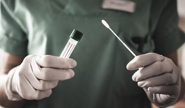 SBPC/ML alerta sobre utilização correta dos testes rápidos - Medicina S/A
