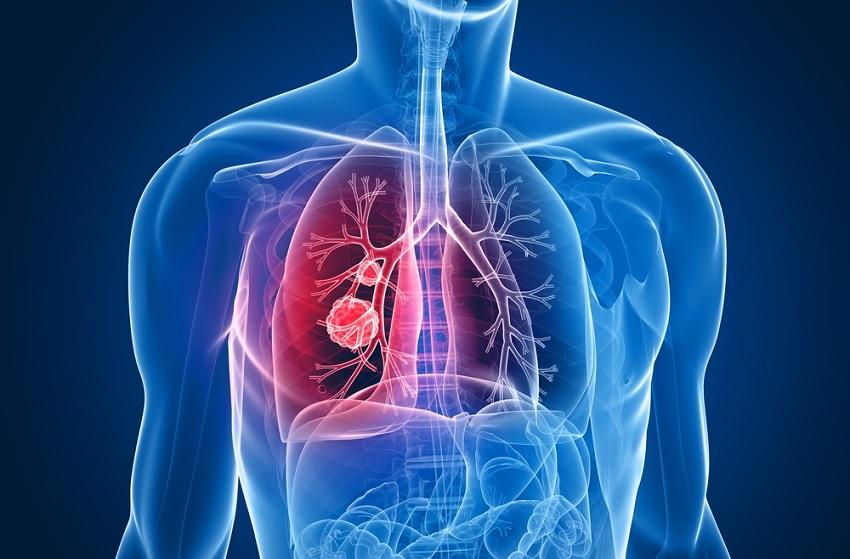 Médica cria unidade móvel para resgate pulmonar de pacientes com Covid