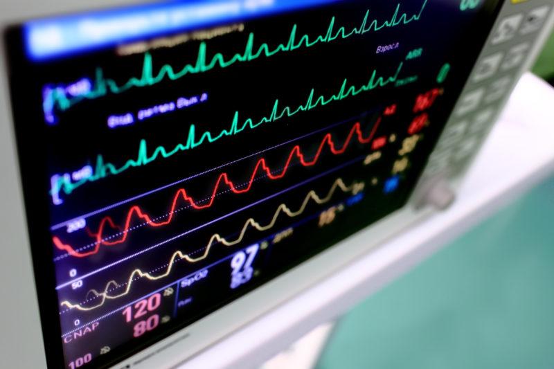 Projeto autoriza uso de leito vago de UTI privada por pacientes do SUS