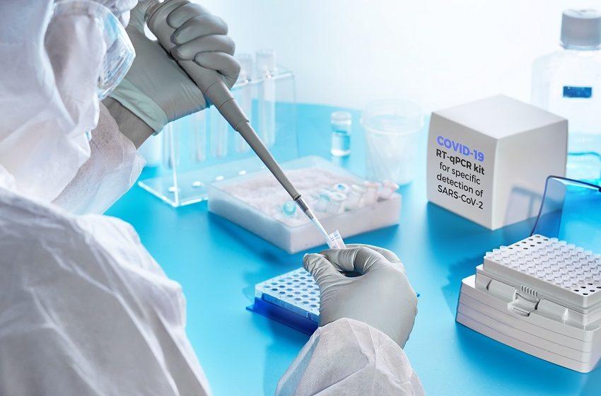 A corrida dos laboratórios privados para ampliar a testagem de Covid