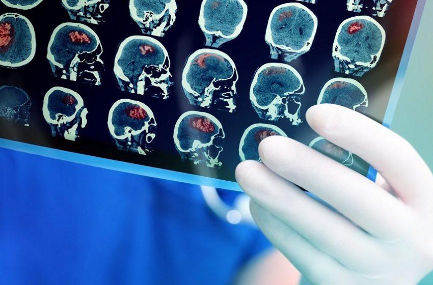 Estudo inédito aponta cenário crítico na reabilitação pós-AVC