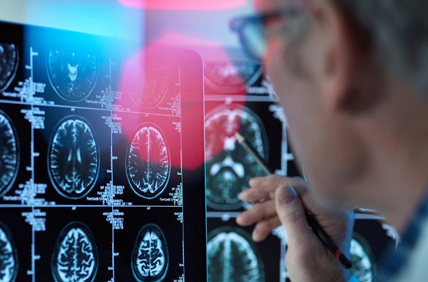 Inovação: O papel do exame Freelite no diagnóstico da Esclerose Múltipla