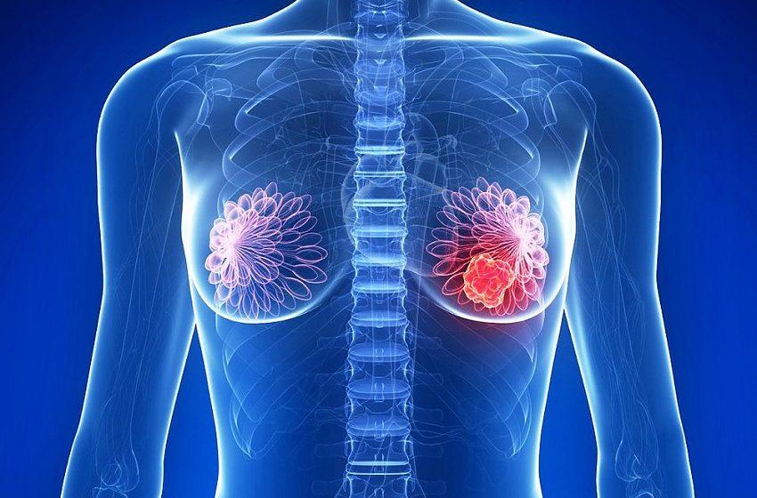 Pesquisa relaciona novos genes ao câncer de mama hereditário